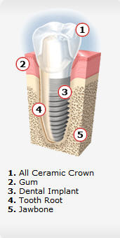 dental-implants-04