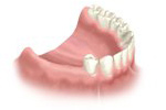 multi-teeth-replacement-02