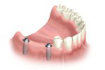 multi-teeth-replacement-03