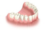 multi-teeth-replacement-05