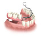 multi-teeth-replacement-06