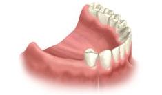 multi-teeth-replacement-01