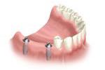 multi-teeth-replacement-03