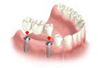 multi-teeth-replacement-04